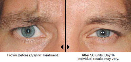 Dysport® and Botox®